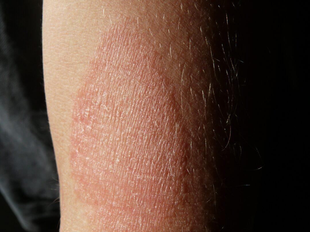 eczema.
