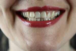 Effective Orthodontic Solutions To Crooked Teeth