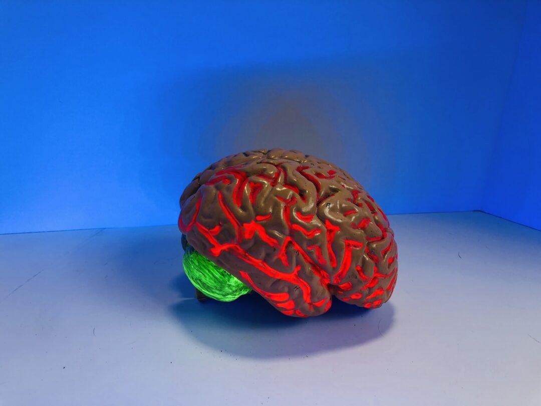 Neurofeedback Treatment