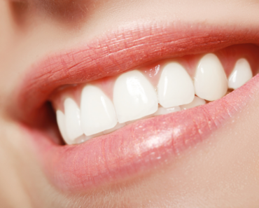 The Benefits of Straight Teeth: A Basic Guide